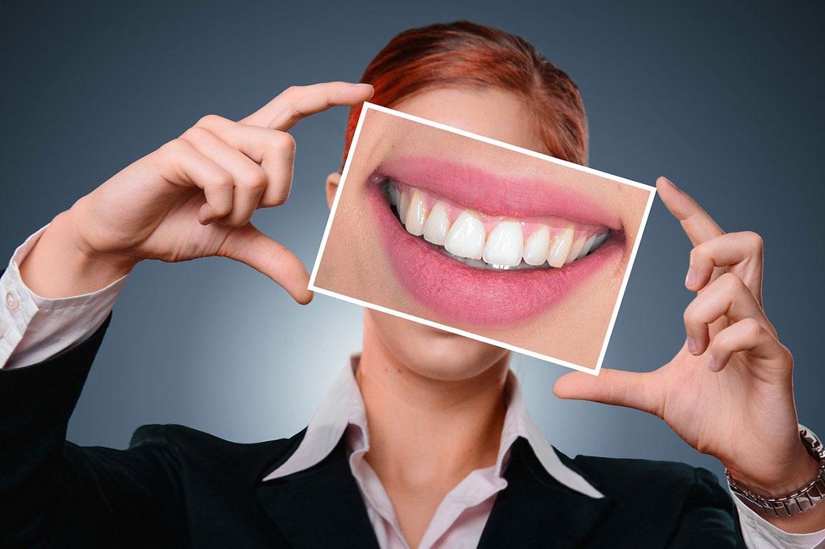 חיוך שיניים